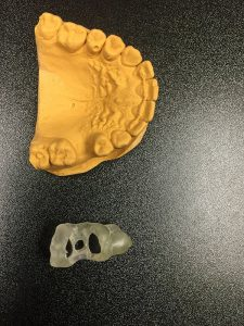 Dental Cast Guide 225x300